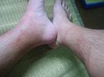 黒っぽく腫れた左足と、みみず腫れの右足